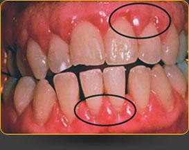 gum disease pic